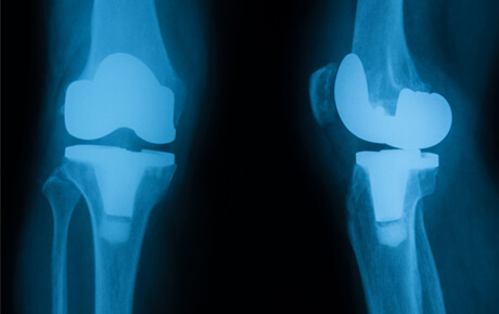 x-ray image of knee replacements